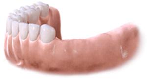 Machoire inférieure aved dents manquantes