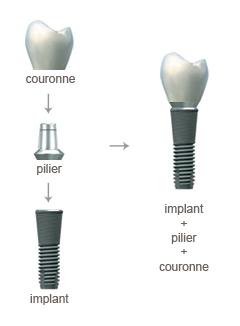 Implant dentaire, pilier et couronne