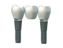 Un bridge en  céramique sur deux implants dentaires