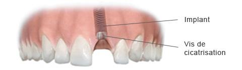 Pose de l'implant dentaire et de sa vis de cicatrisation