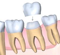 Pose d'une couronne dentaire sur une molaire