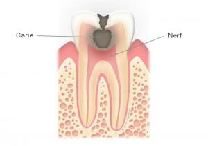 Dent cariée (molaire)