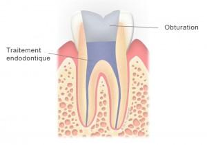 Dent dévitalisée (molaire) avec obturation