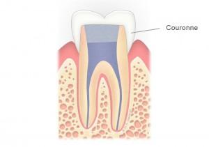 Dent dévitalisée couronnée