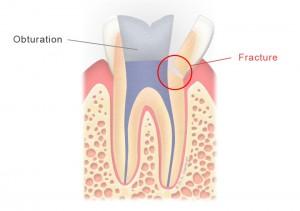 Dent dévitalisée fracturée