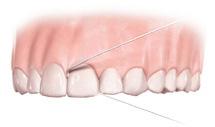 Comment utiliser le fil dentaire