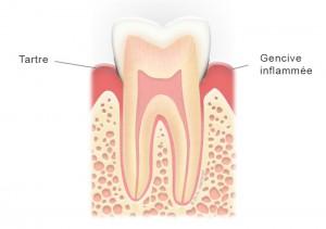 Dent avec gingivite et tartre