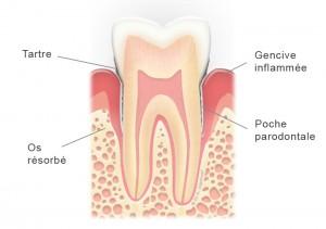 Dent avec parodontite et poche parodontale