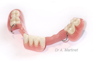Prothèse dentaire en résine