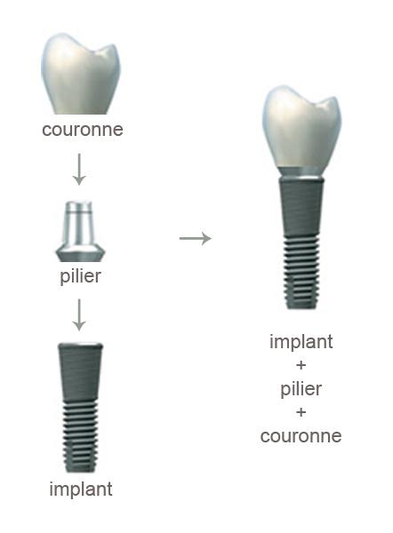 les implants dentaires docteurs martinet et jacquin dentistes saint avold 57500. Black Bedroom Furniture Sets. Home Design Ideas