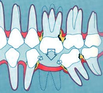 Les conséquences du non-remplacement d'une dent manquante